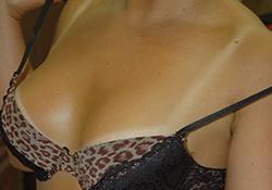suness-spray-tanning